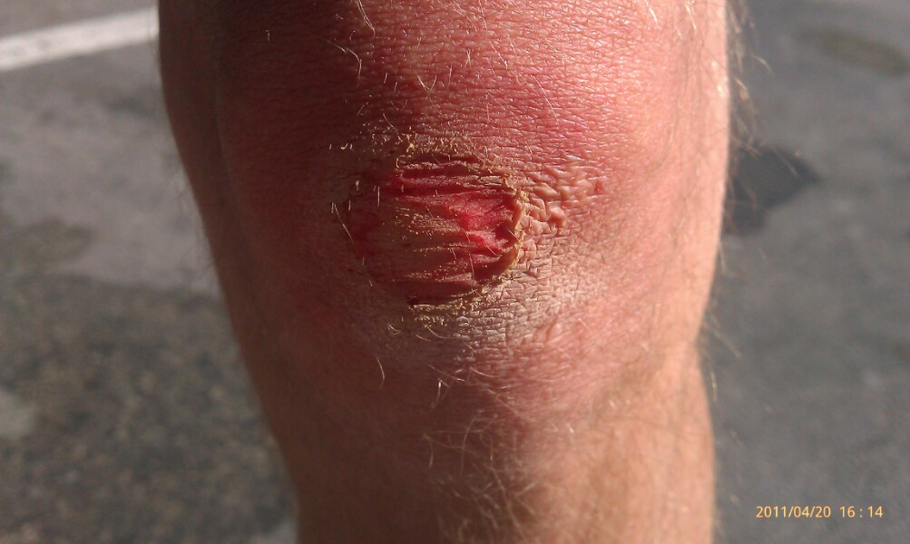 How To Effectively Treat The Road Rash